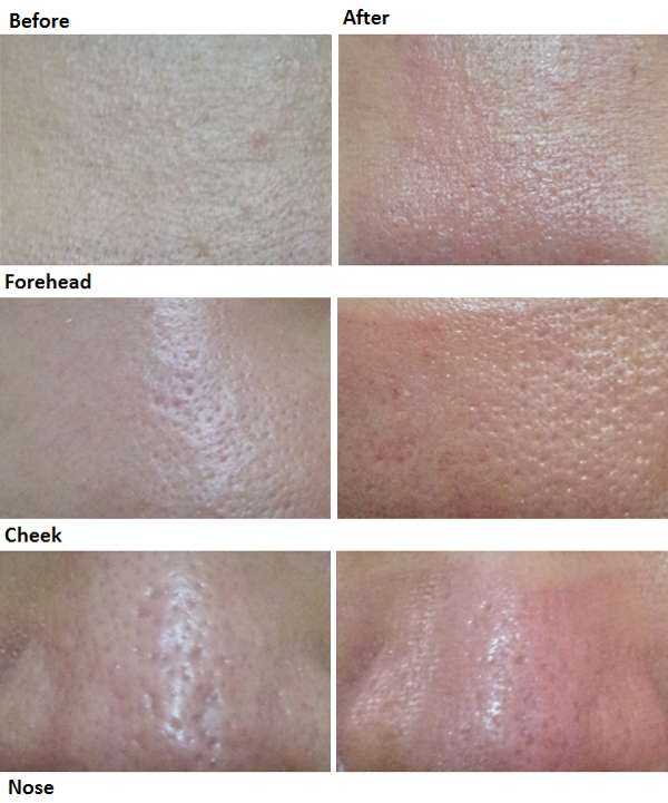 Co2 Fractional Laser Before and After