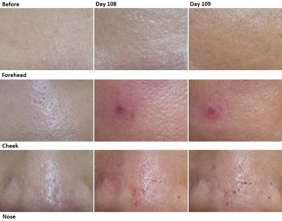 Co2 Laser For Acne Scars Archives Chen S Blog