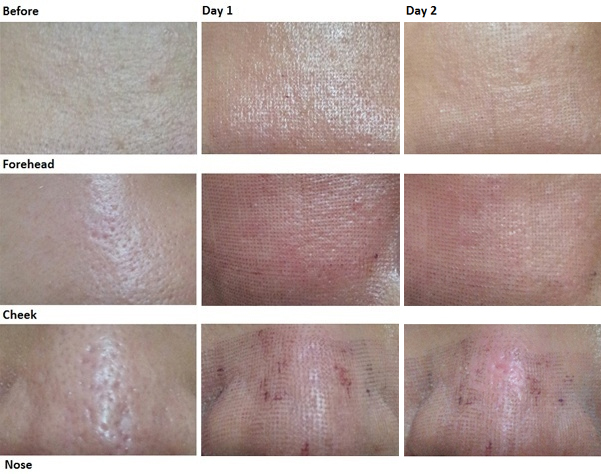 dot laser treatment essay Laser therapy techniques vary based on the procedure if a tumor is being treated, an endoscope (a thin, lighted, flexible tube) may be used to direct the laser and view tissues inside the body.
