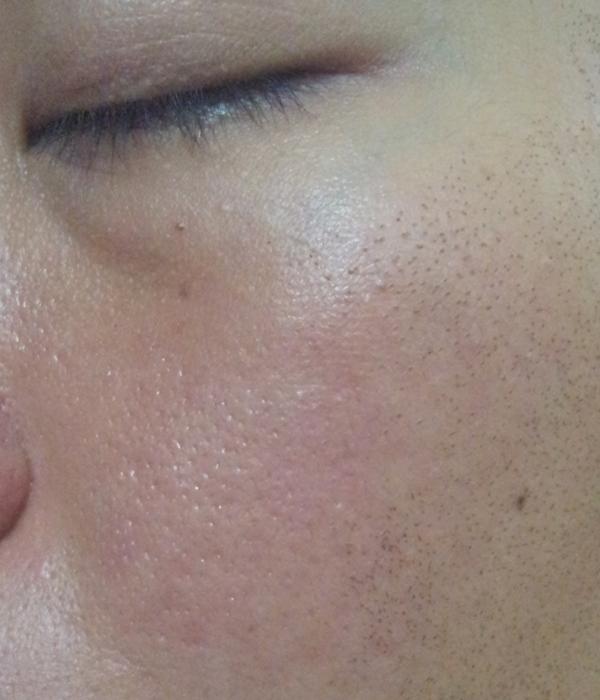 Dermatillomania Archives Chen S Blog