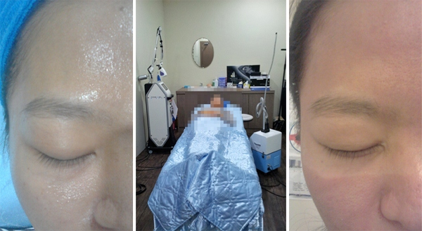 Process of Fractional Co2 Laser Treatment
