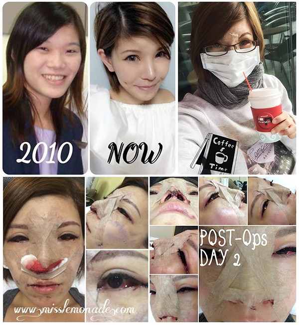 Korean Plastic Surgery